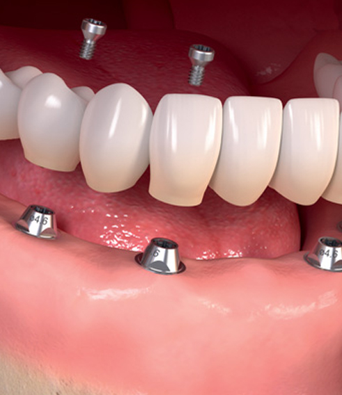 best dental implants in Austin